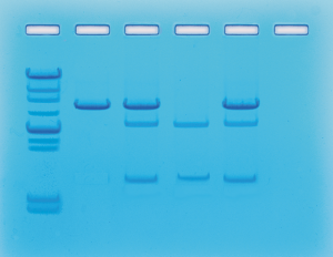 Elektroforeza DNA