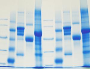 Białka, enzymy i chromatografia